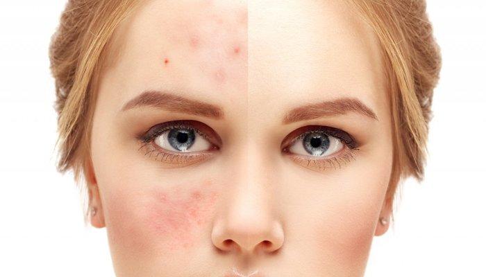Skinbiotics gettyimages gmint 1024x612