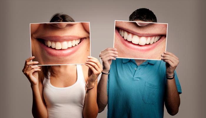 Istock 1140139746 couple smiles white teeth dental dentist